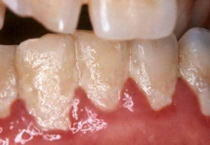 Why Do My Gums Bleed Northside Dental Care Bellingham Wa