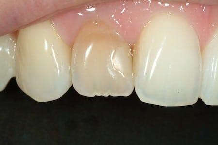 WHY DO I HAVE A DARK TOOTH?   Northside Dental Care   Bellingham